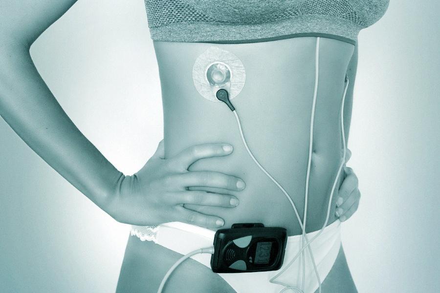 24-Stunden Langzeit-EKG Untersuchung